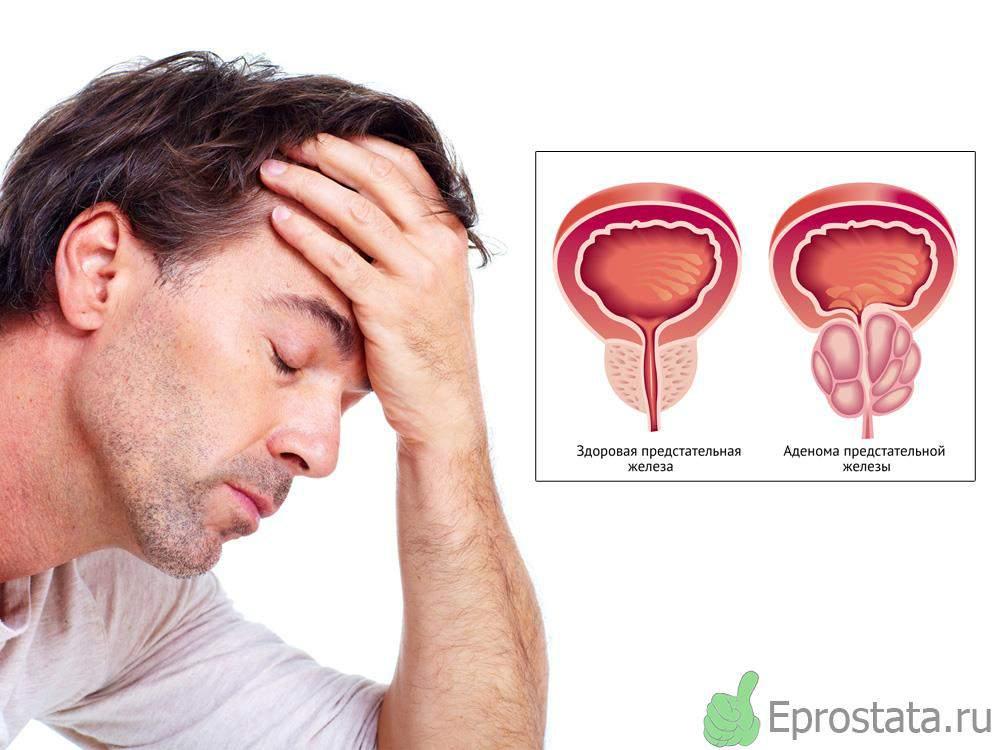 При раке предстательной железы