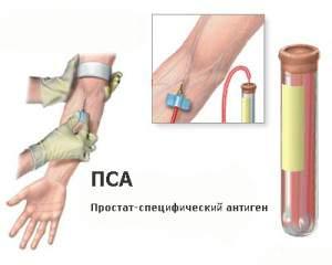 Перечень лекарственных препаратов от простатита