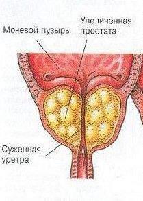 Удаления фиброзы предстательной железы