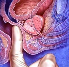 Ректальное исследование пальцем