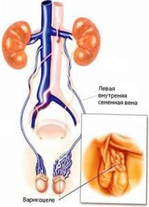 operaciya-marmara