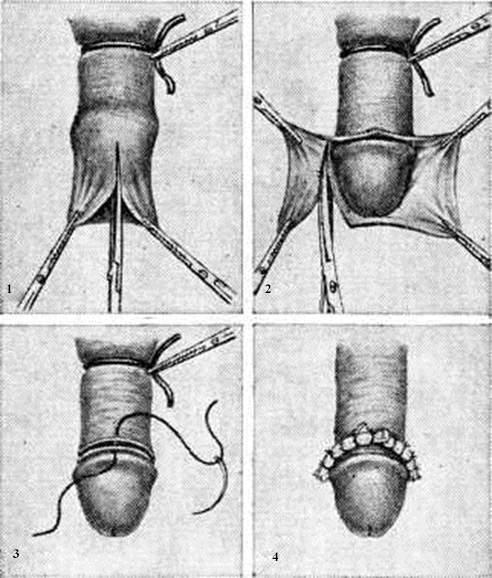 Сколько можно прожить с аденомой простаты