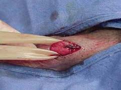 Суть оперирования варикоцеле