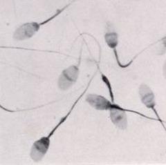 Astenozoospermija-vidy-i-stepeni