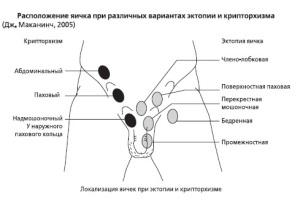 Различные виды крипторхизма у мужчин