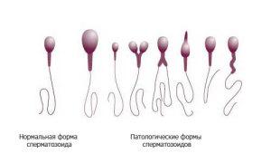 Аномальные сперматозоиды
