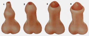 Четыре вида фимоза