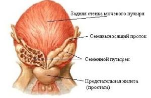 Везикулит или хронический сперматоцистит