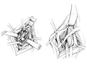 операции Мармара при варикоцеле