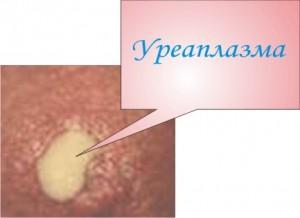 Лечение уреаплазмоза у мужчин