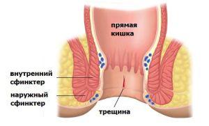 Лечение анальной трещины простопином
