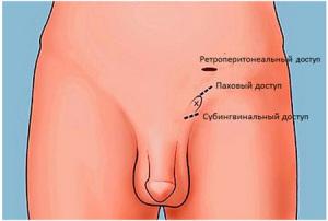 Операция Мармара — суть и преимущества метода
