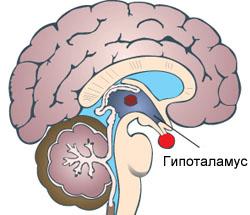 Патология гипоталамуса как следствие высокого уровня пролактина