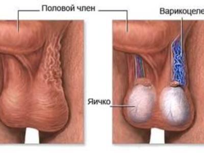 Причины варикоцеле, врожденные и приобретенные