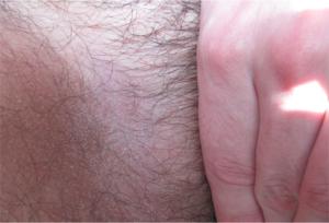 Лечение опрелости в паху у мужчин — kdsp1.ru