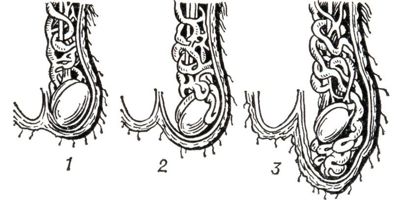 Три степени развития варикоцеле