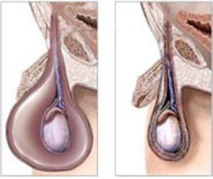Водянка яичек - признак варикоцеле