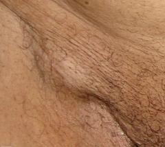 лимфоузлы паховые у мужчин фото