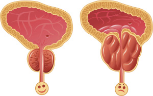 Cимптомы нарушения работы предстательной железы