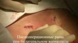 Реабилитация после операции Иваниссевича
