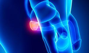 analiz-sekreta-prostaty