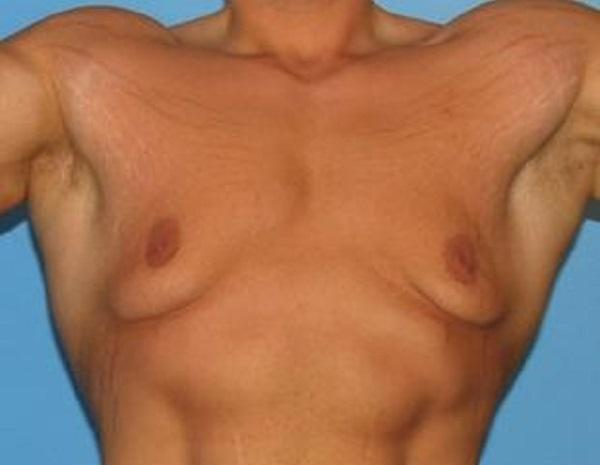 Повышение и понижение уровня эстрадиола у мужчин