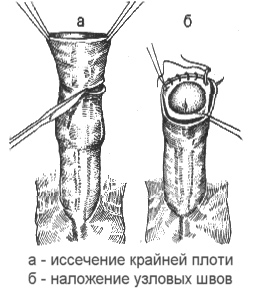 dlinnaja-krajnjaja-plot