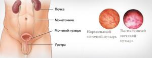 Цистит у мудчин - этиология