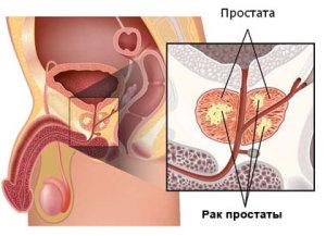 Опухоль предстательной железы - причина слизи в моче